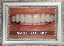 closeup of a smile with the text 'smile gallery' superimposed